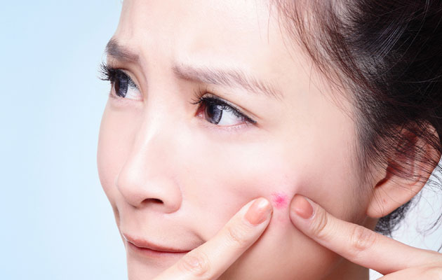 Cure Acnes from Chemical Peels and Medi-facials, to PPX Pore-Cleansing ACNE Treatment