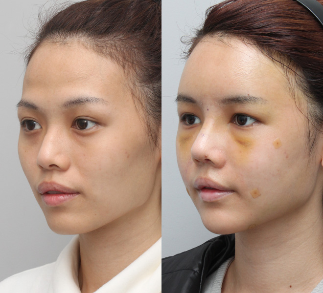 Jang Geun Suk Plastic Surgery Before and After Pictures 2018