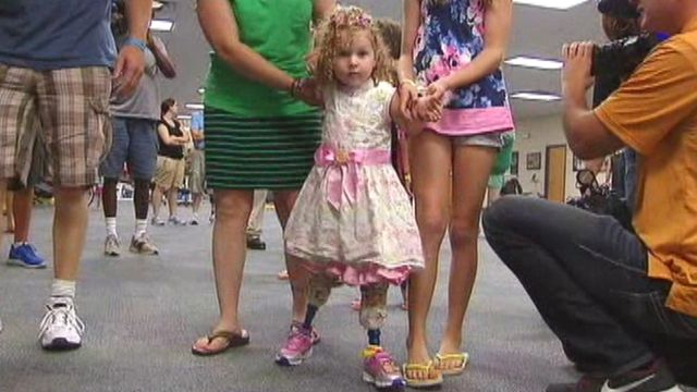 Toddler's first steps with new legs after lawnmower accident