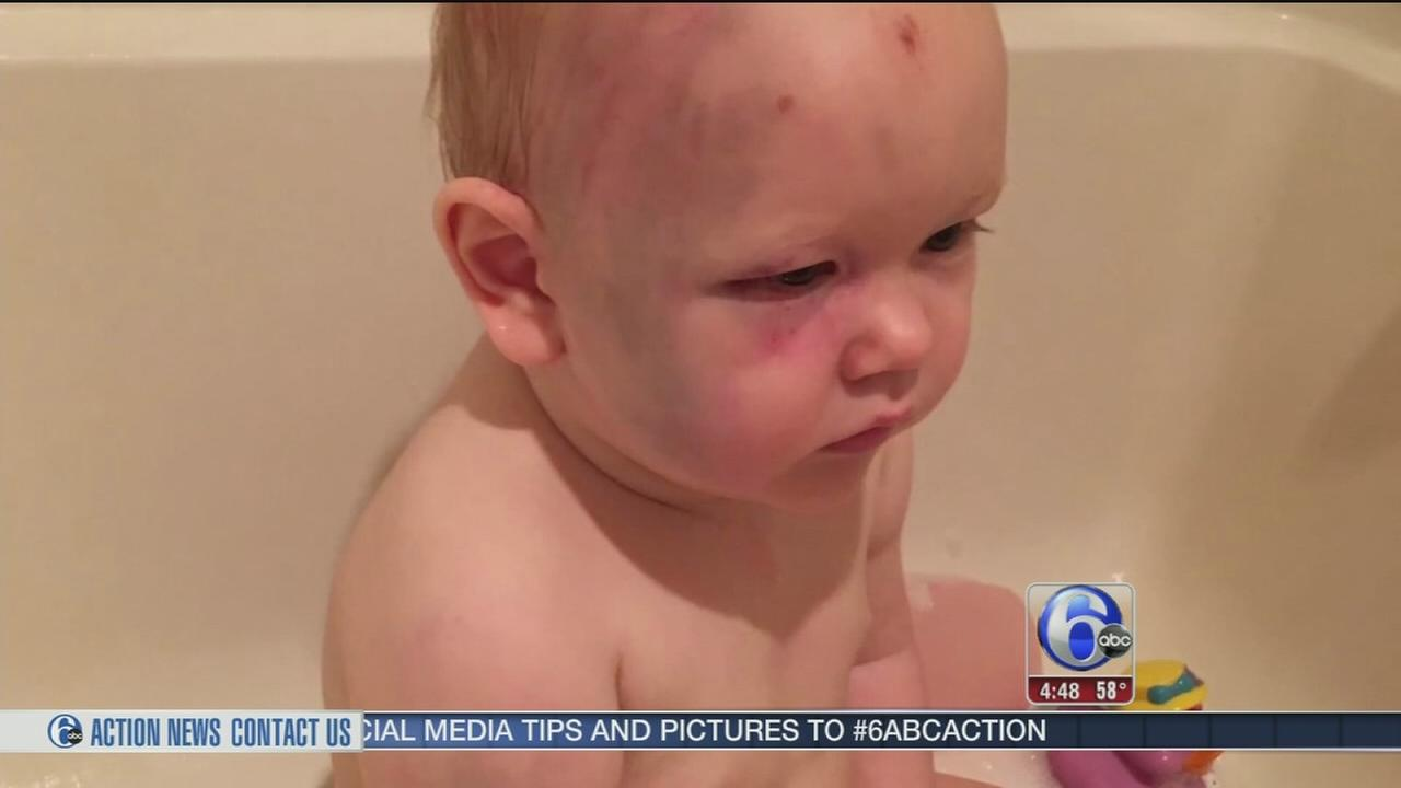 Parents turn to social media in alleged babysitter abuse case