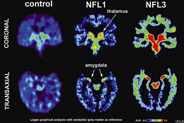 This slide from UCLA shows the buildup of tau protein (red) in two former NFL players' brains.