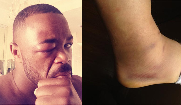 Rashad Evans' busted eye and Mac Danzig's busted ankle are your pictures of the day
