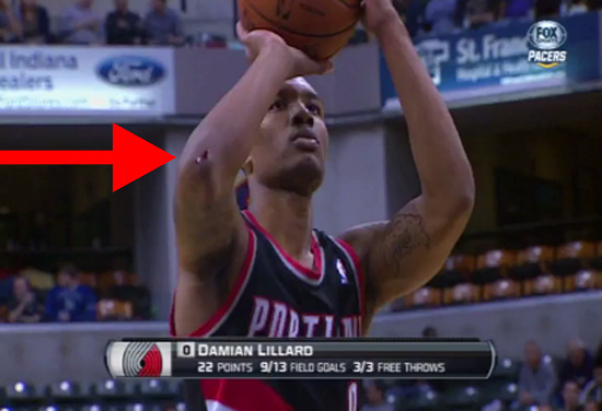 Damian Lillard had a gash on his right elbow after colliding with Roy Hibbert. (Screencap via Synergy Sports)