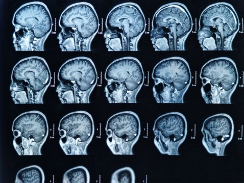 MRI brain scan (Thinkstock)