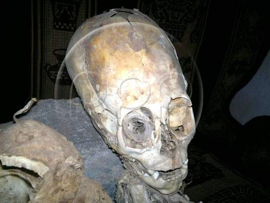 Scientists aren't clear on the origin story for this ancient Peruvian skull (Photo courtesy of RPP)