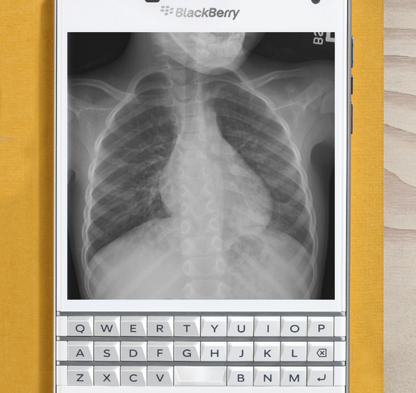 BlackBerry reveals the Passport's killer feature: The ability to look at x-rays of your lung
