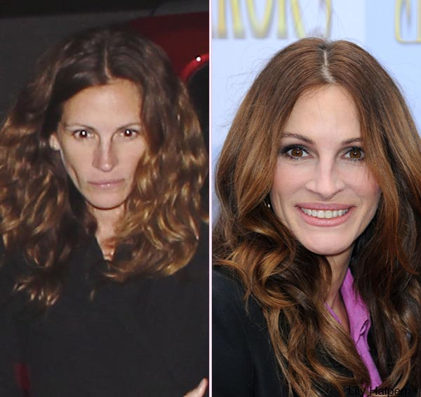 julia-roberts-before-after-ftr