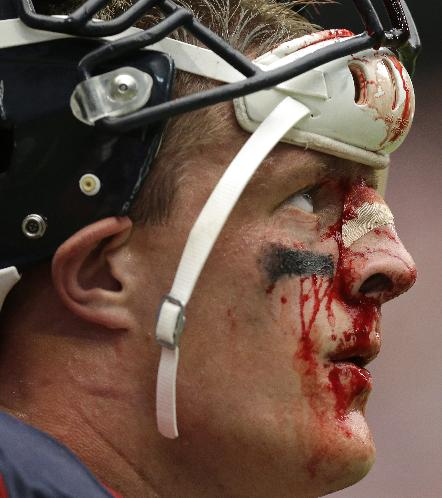 In this Sunday, Sept. 29, 2013 file photo, a bloodied Houston Texans' J.J. Watt stands on the sideline during the fourth quarter an NFL football game against the Seattle Seahawks in Houston. A violent collision during the game resulted in a deep gash on the bridge of his nose, which required six stitches. The gash kept opening in subsequent games, so now that the season is winding down, Watt tells The Associated Press he'll look into having plastic surgery in the offseason to repair the injury