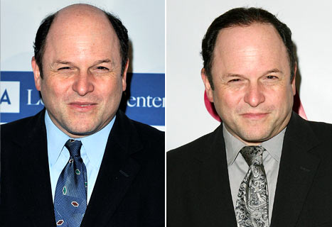 PIC: Balding Jason Alexander Debuts Full Head of Hair