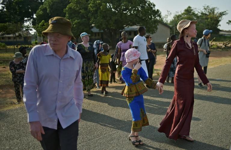 Albino teen found dismembered in Burundi: association