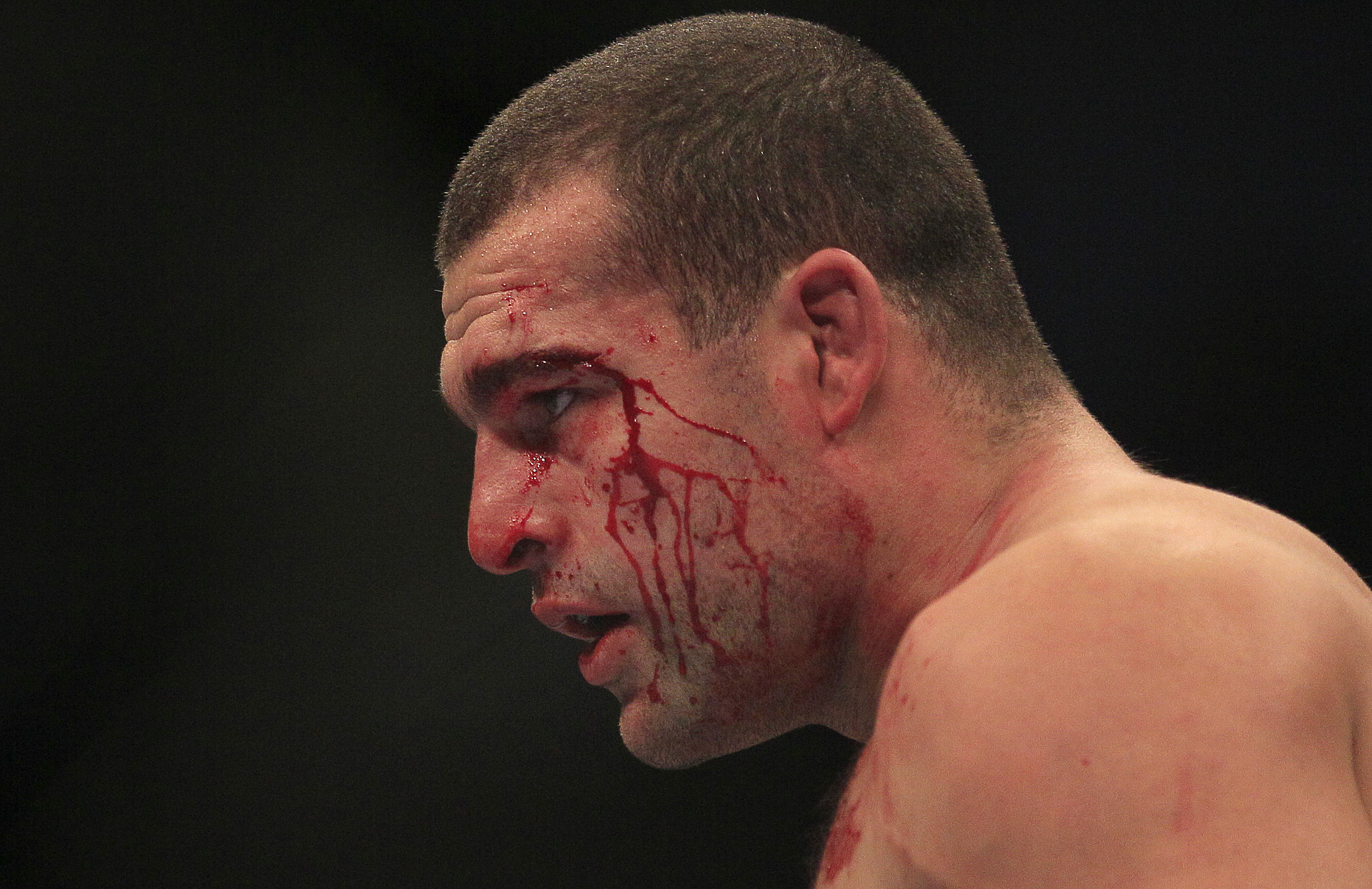 Mauricio Rua is already bruised and bloody in the first round of his fight against Dan Henderson. (AP)