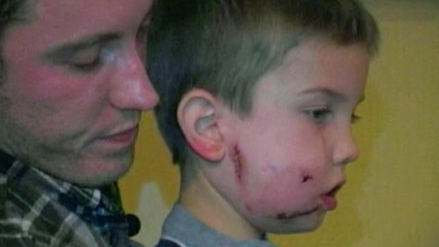 Boy, 6, Survives Mountain Lion Attack (ABC News)