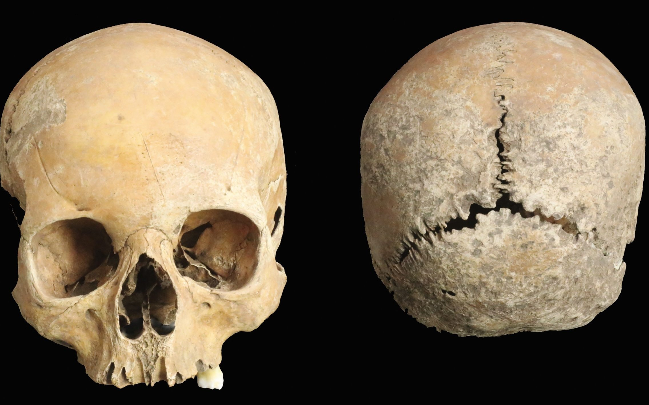 Anglo-Saxon skull found with nose and lips cut off is first physical evidence of brutal punishment for adultery