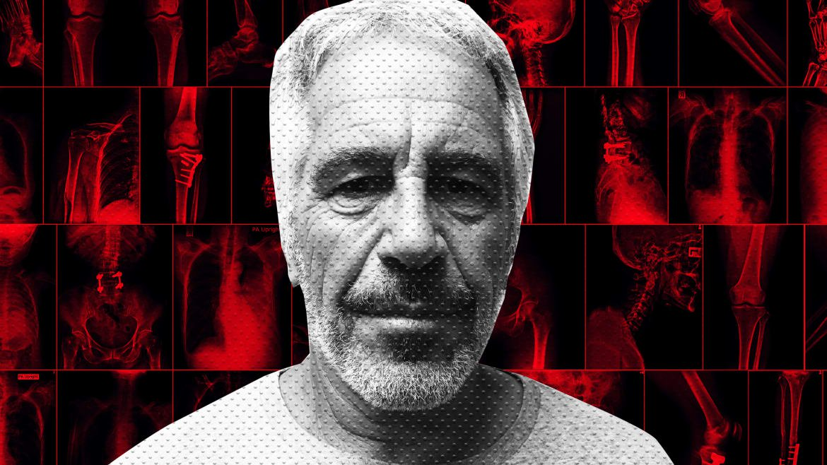 Jeffrey Epstein Camp Sent Pathologist Michael Baden to Watch Over His Autopsy