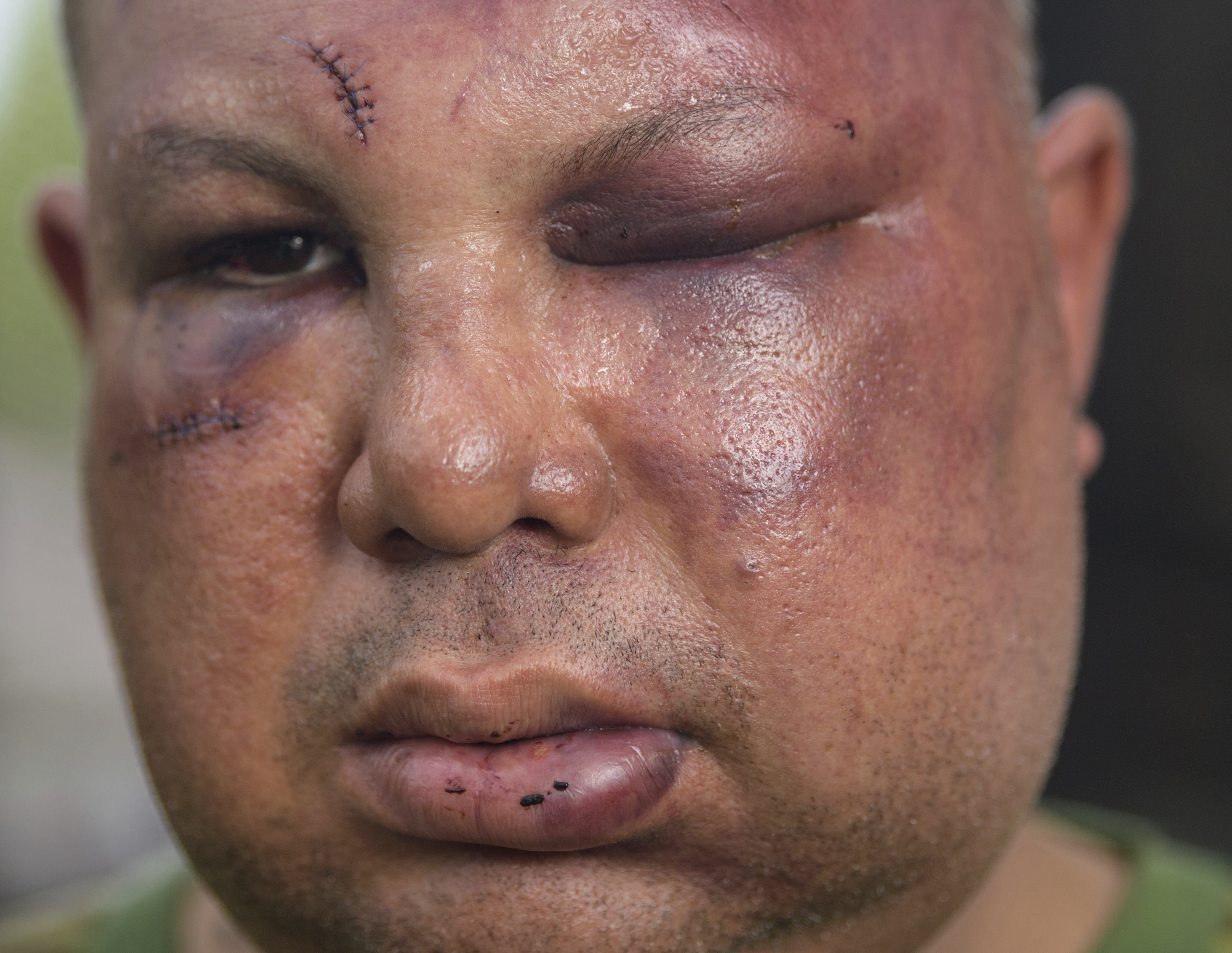 2nd ex-New Orleans cop takes plea deal in Hispanic beating