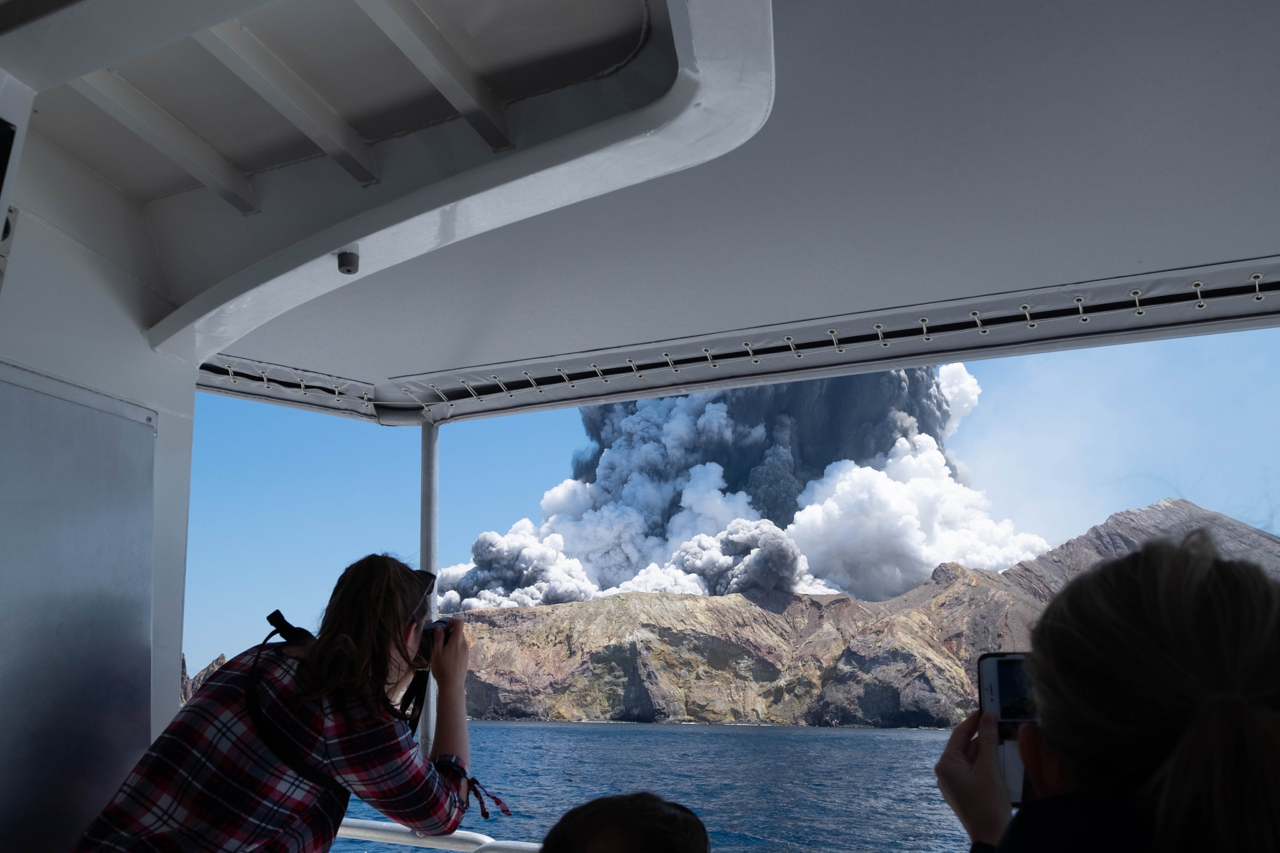 American newlyweds are progressing from volcano burns