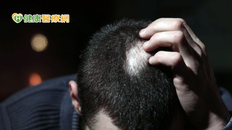 男性也能有女性雄性禿!! 雄性禿治療診斷大解密