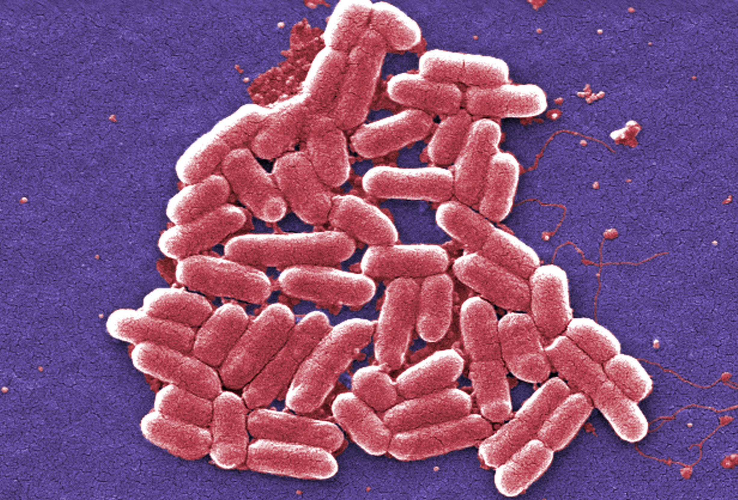 The threat of 'superbugs' and infections that can't be treated