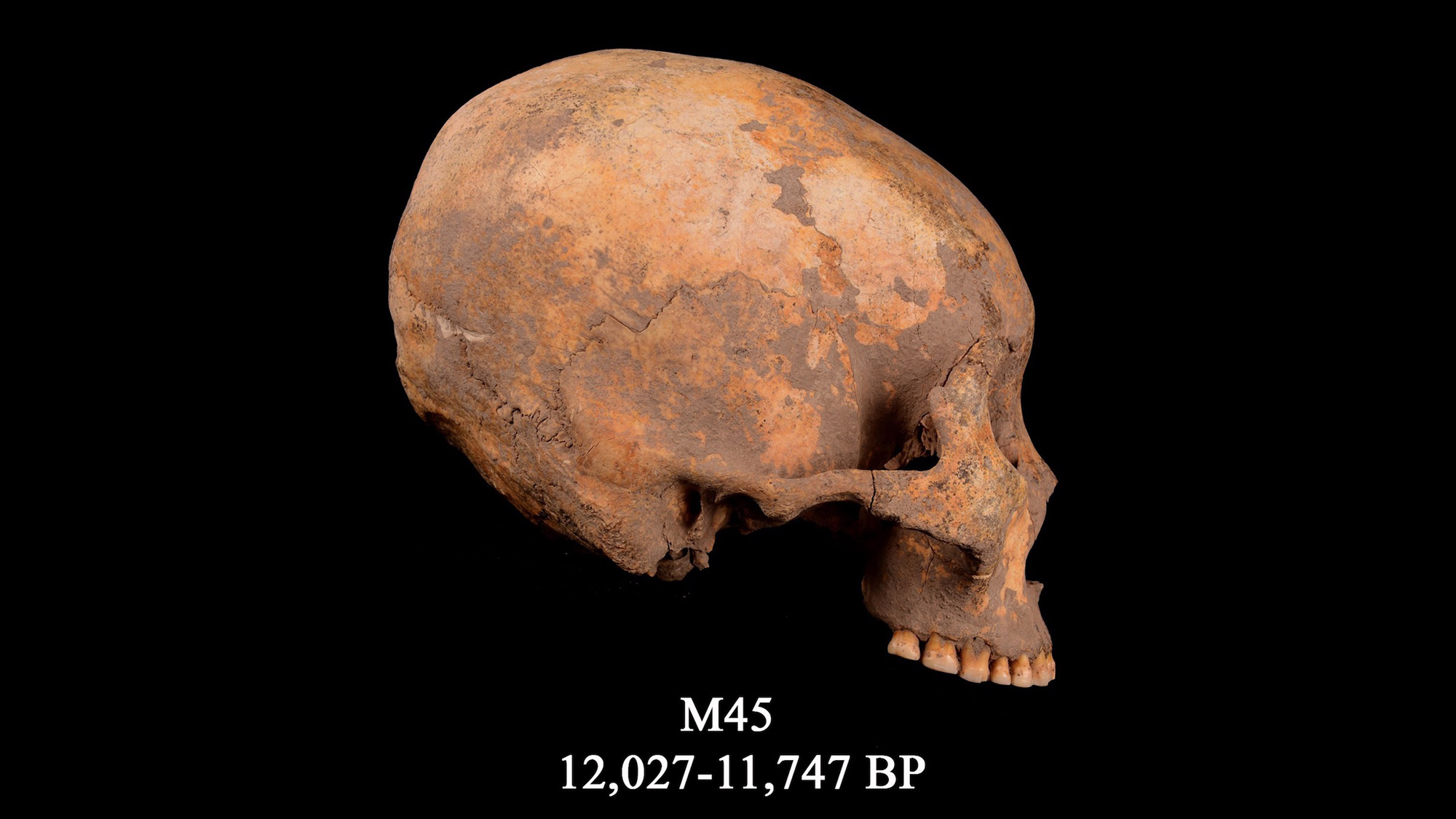 12,000 Years Ago, a Boy Had His Skull Squashed into a Cone Shape. Its the Oldest Evidence of Such Head-Shaping