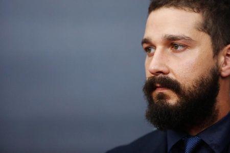 Ator Shia LaBeouf sofre pequena lesão durante filmagem