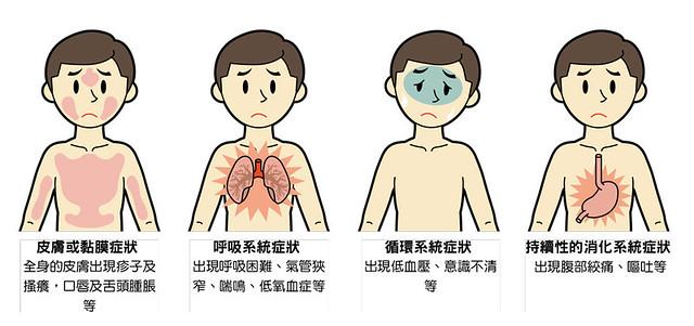 過敏性休克的症狀