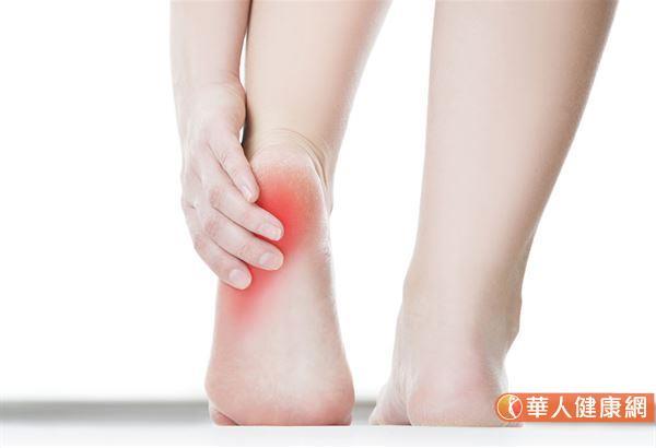 開始行走幾步之後疼痛降低,但是久走或久站之後疼痛復發,以及運動後(而不是運動期間)後腳跟疼痛加劇,小心是足底筋膜炎發作。