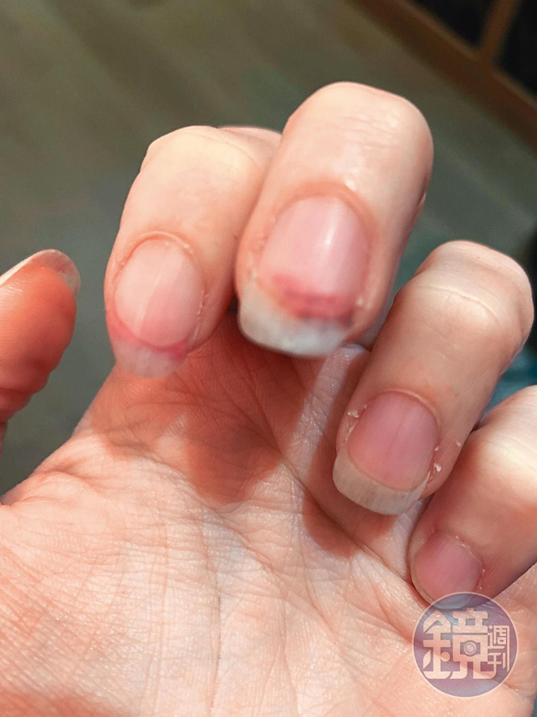 張劭緯跨年夜返家,和老婆起爭執又推擠,安晨妤被家暴後,乳溝出現一片瘀青;手指頭也因用力推拉而出血。(讀者提供)