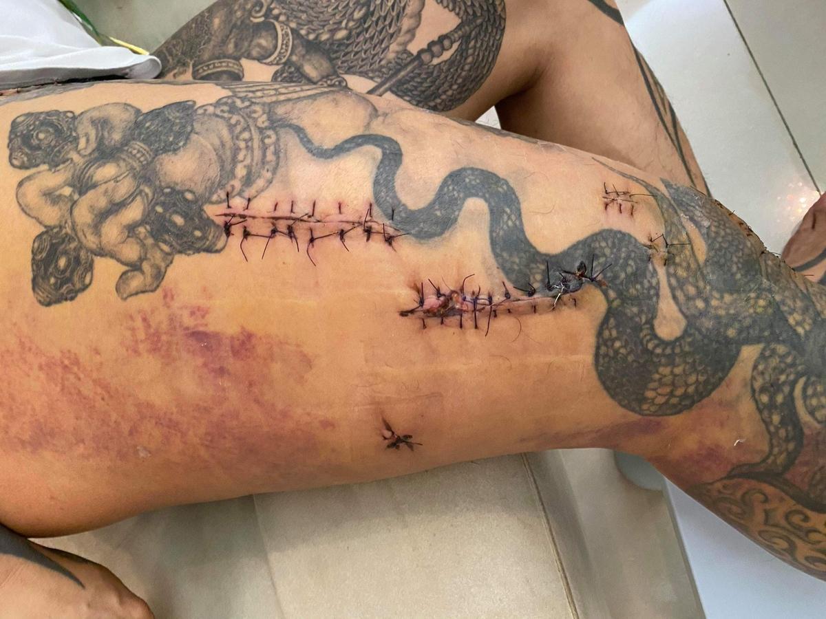 館長於臉書po出數張「槍傷彈痕照」,更留言強調「你可以摧毀我的肉體,但你無法摧毀我的意志。」(翻攝自飆捍臉書粉專)