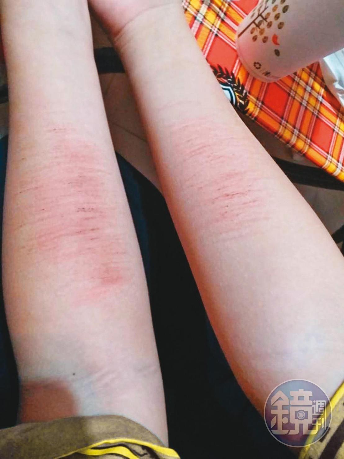罹患憂鬱症的庭庭多次自殘,2隻手臂滿滿都是美工刀刻畫過的傷痕。(讀者提供)